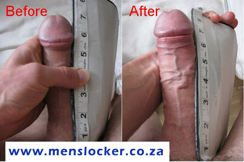 Before and After - Erect